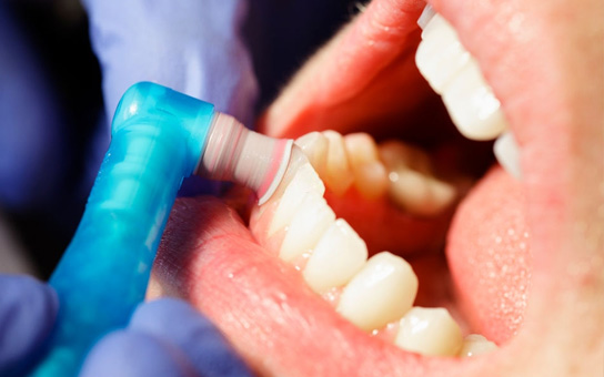Tooth Polishing Service in Vizag